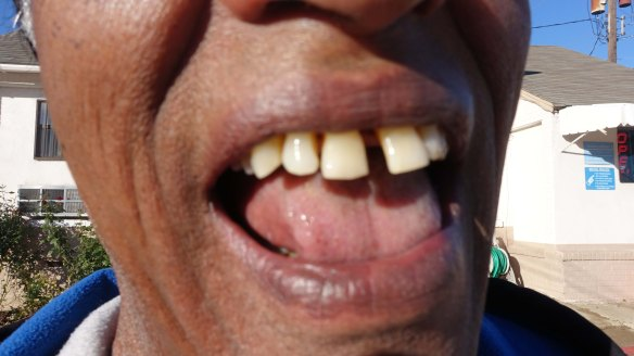 Nick's teeth