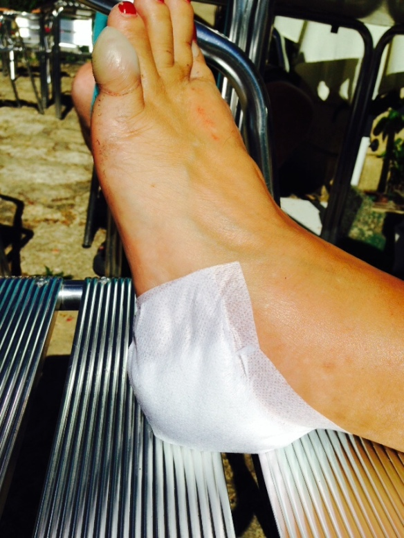 Kerstin's foot after treatment