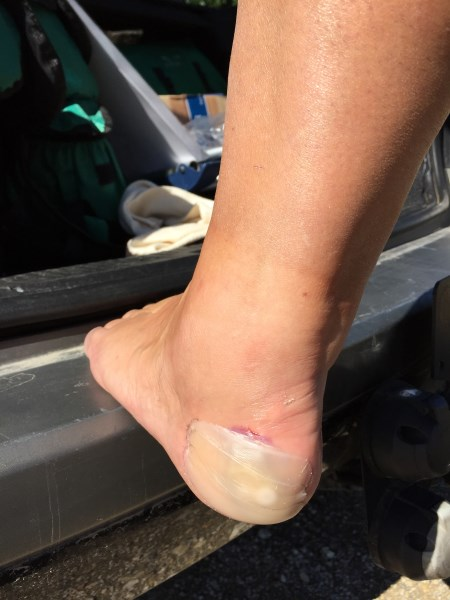 Kerstin's foot before treatment