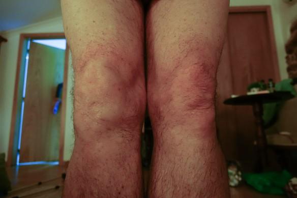 knees-1
